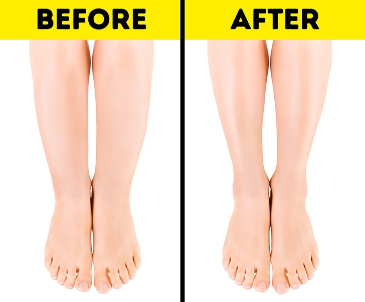 Why You Have Cankles and 7 Tips to Help You Deal Fix Them