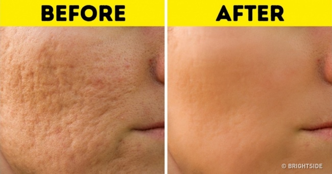 10 Hacks to Remove All Types of Scars and Help Them Heal | Vicious